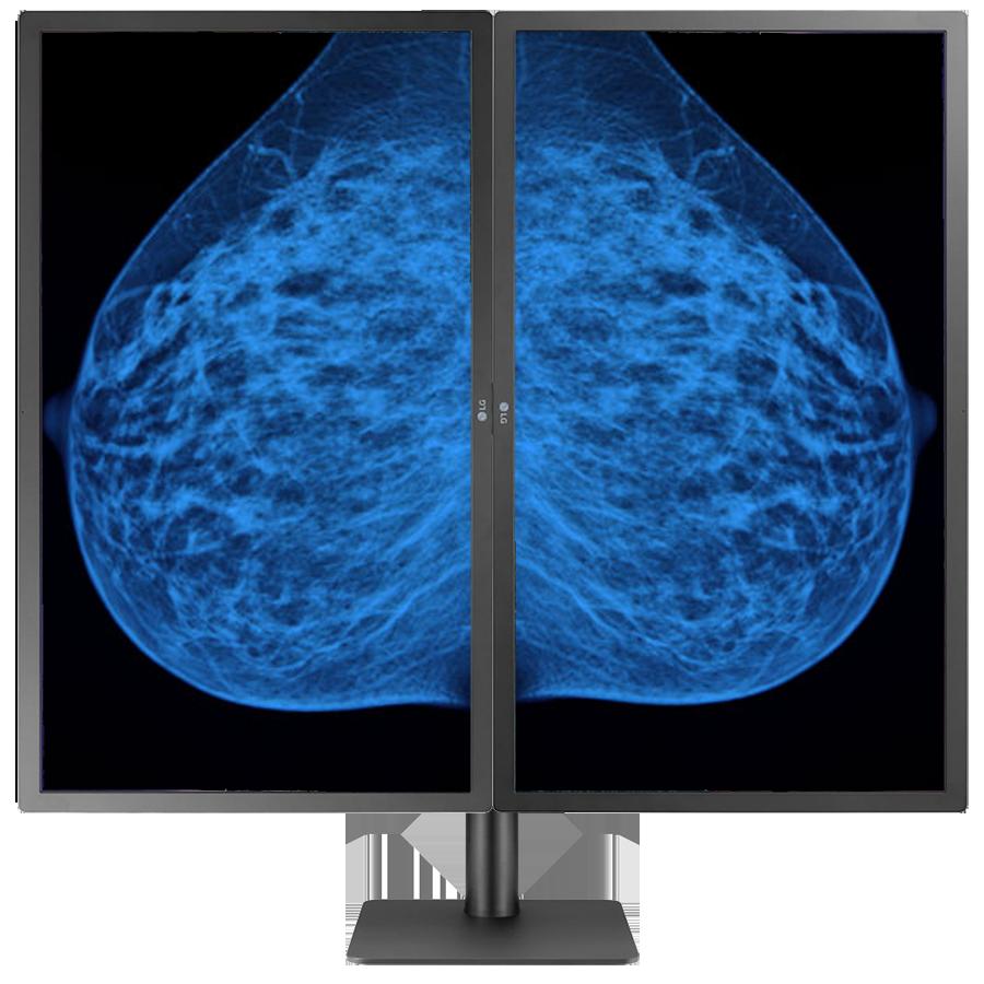Mammography Monitor
